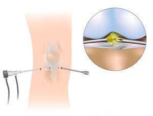 artroskopi1