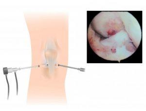 artroskopi2